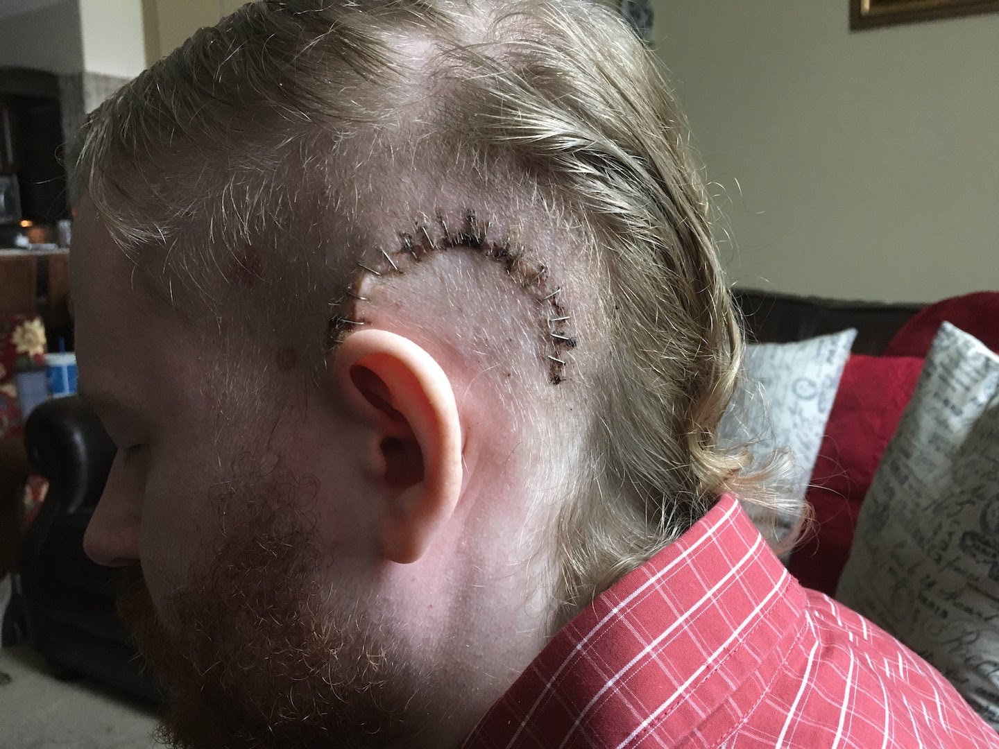 Staples in my skull a couple weeks after my brain surgery.